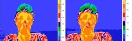Termografia-nariz_ESTIMA20121123_0037_12