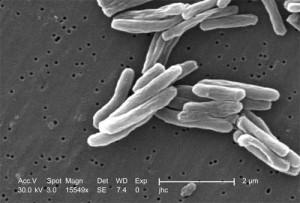 mycobacterium-tuberculosis